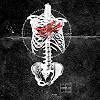 emesis: anatomy: stain (pic#101166)