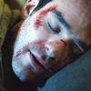 burdenofguilt: (bloody | pillow | sleep)