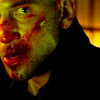 thegoodbad: (angry ☠ bloodied)