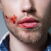 seekingvinland: (PB short - bloody lips)