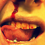 marselli: my favorite user pic in my collection, i didn't make it but if anyone know who did please let me know (teeth, gore, blood, broken nose)