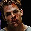 xp_cyclops: (Beaten up)