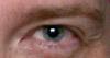 varjohaltia: (Eye)