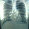 pshaw_raven: (X-Ray Forest)