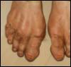 msilverstar: (feet)