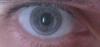 alicephilippa: (eye)