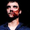shoveltoface: (Hurt - bloody face)