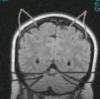 dpfesh: (Hello Kitty brain)