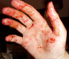 pseudomonas: My hand, red with sloe pulp (hand)