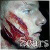 brutalcareer: The wounds from the muttations. (scars)