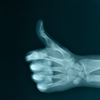hsapiens: (Misc -- Thumbs Up X-Ray)