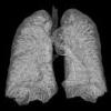 pneumonie: (Default)