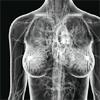 womanbyproxy: x-ray (Default)
