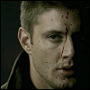 fragmentedwhole: (Dean bloodied)