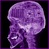 acelightning: skull x-ray showing computer parts inside (compu-brain)