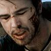 andyougoleft: (Damage: Bloody)
