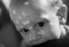 lidarick: (chickenpox)