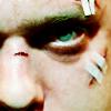 purpleyin: Close up of Peter Bishop's beaten up face (beaten)