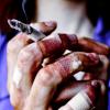 darkrosaleen: (beat up)