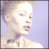 akatawitch: (Proud Albino)