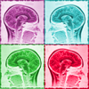 headache: four different colored panels of the MRI image of a brain (Default)